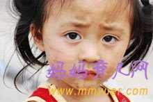 春季孩子咳嗽三大类  妈妈要辨清类型注意饮食