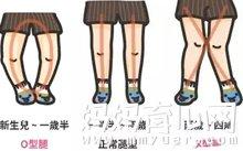 宝宝O型腿只因穿错鞋 90%的妈妈都在犯的错!
