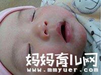 宝宝脸上长小红疙瘩怎么办 如何治疗快速又有效