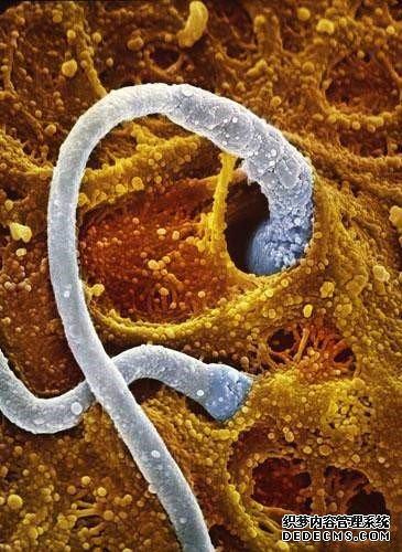 胎儿发育过程b超图 男女胎儿b超发育全过程高清