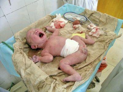 一位顺产妈妈分娩全过程图片 3