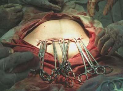 顺产产视频全部过程_剖腹产分娩全过程(视频截图)(3) - 妈妈育儿网