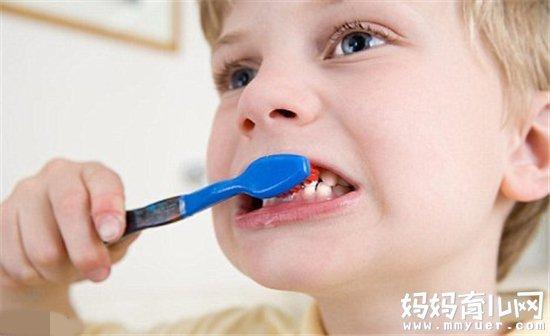2岁孩子蛀牙图片图片1