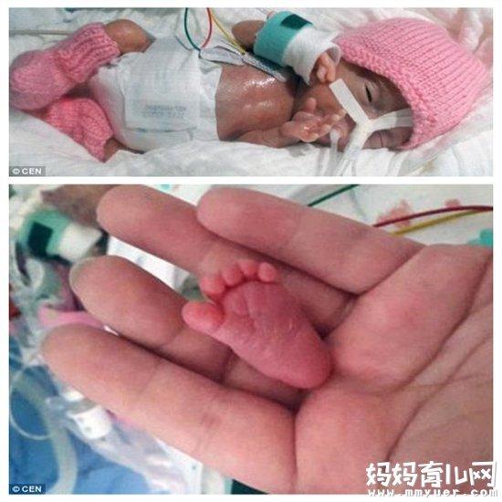 0.4斤世界上体重最轻但仍存活的婴儿 如何预防早产