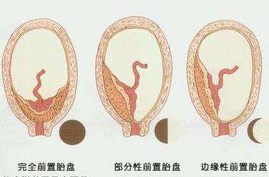 什么是胎盘前壁 胎盘前壁0级是什么意思