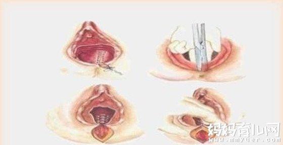 一组女人顺产侧切伤口图片  看得我胆战心惊!