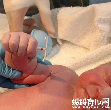 婴儿手握避孕环出生 上了环为什么还会怀孕?