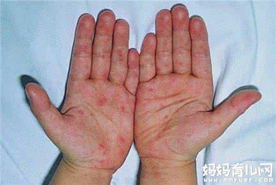 了解手足口病初期症状(附图)为宝宝做好预防护理工作