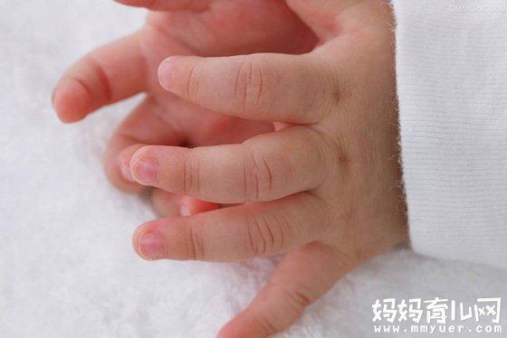 手足口病怎么治疗 西医、中医治疗各有妙招!