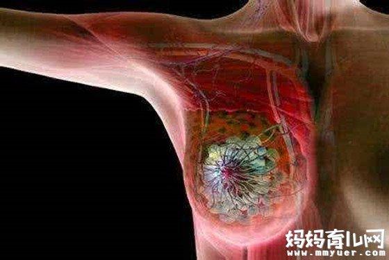乳腺癌是怎么引起的6大原因 别说你知道!