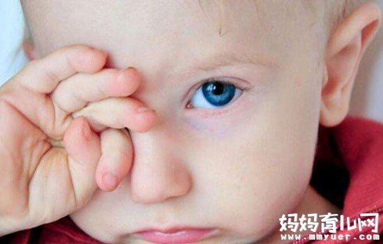 儿童角膜炎怎么治疗的方法 轻松赶走角膜炎
