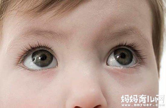 小孩眼屎多是什么原因 看仔细!你家小孩中了哪一条?