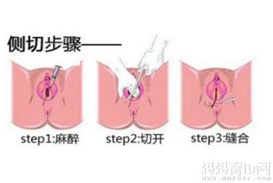 【顺产侧切】顺产侧切伤口多久恢复 顺产侧切伤口图片