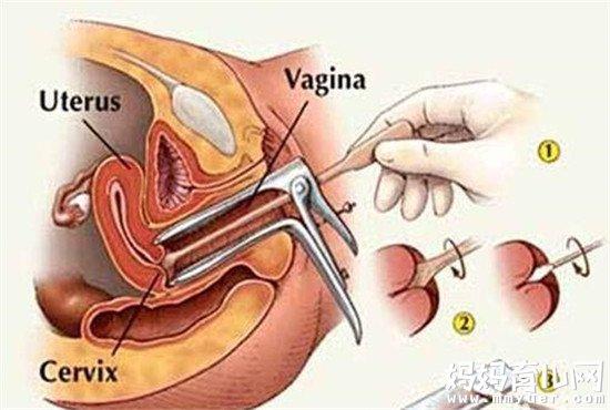 宫颈活检后多久能同房的秘密 别跟我说你知道
