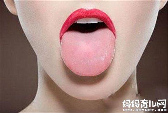 舌苔厚白是怎么回事你造吗 提示你可能已经患病了!