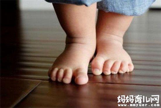 宝宝垫着脚走路的原因终于找到了!不多不少就4个!