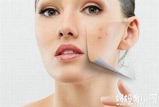 脸上长痘痘怎么调理的秘诀 6个小方法让烦人痘痘消失不见