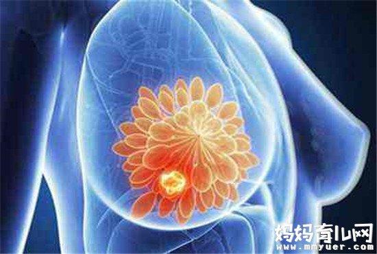 乳腺增生可以按摩缓解吗 简单易学的三种按摩手法