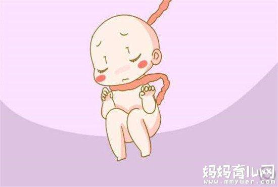 别一说脐带绕颈就乱了阵脚  支招脐带绕颈一周怎么办