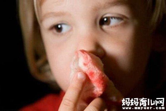 小孩流鼻血怎么办 远离止血误区是快速止血最简单的方法