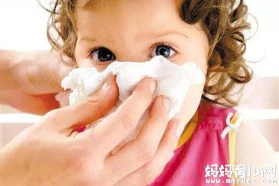 宝宝感冒流鼻涕怎么办 五个食疗偏方巧应用有神效