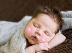 解读宝宝睡觉脸红怎么回事  这种情况家长应提高警惕