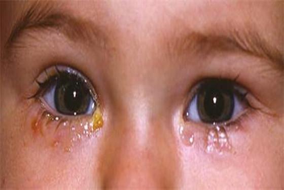 为什么新生儿眼睛流泪出眼屎  新生儿眼死多怎么处理