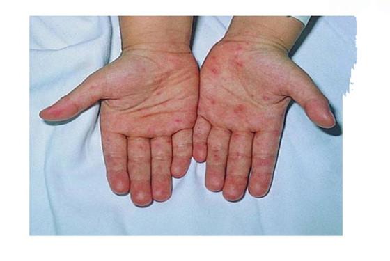 什么是手足口病 儿童手足口病要注意什么事项
