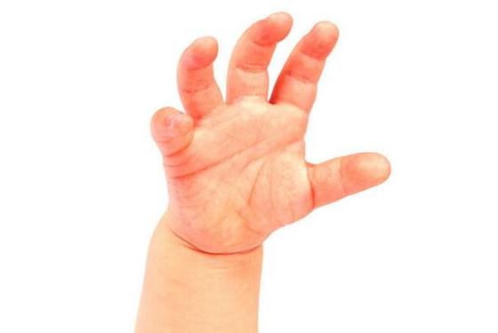 手足口病一般几天能好 手足口病发烧几天能退