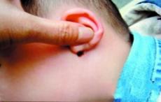宝宝耳朵长冻疮怎么办的方法大集合  总
