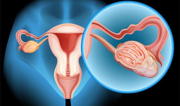 子宫移植需要多少钱 男人移植子宫是不是也可以快乐赛车开奖网