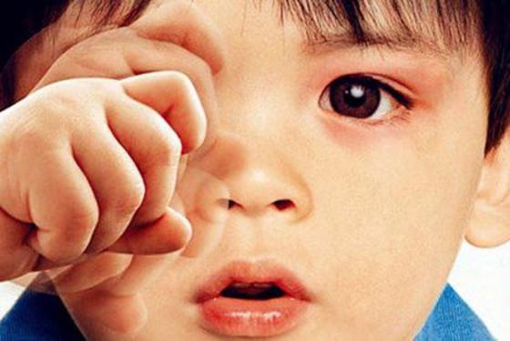 小孩眼睛痒处理小窍门 快决解决宝宝眼睛痒的大问题