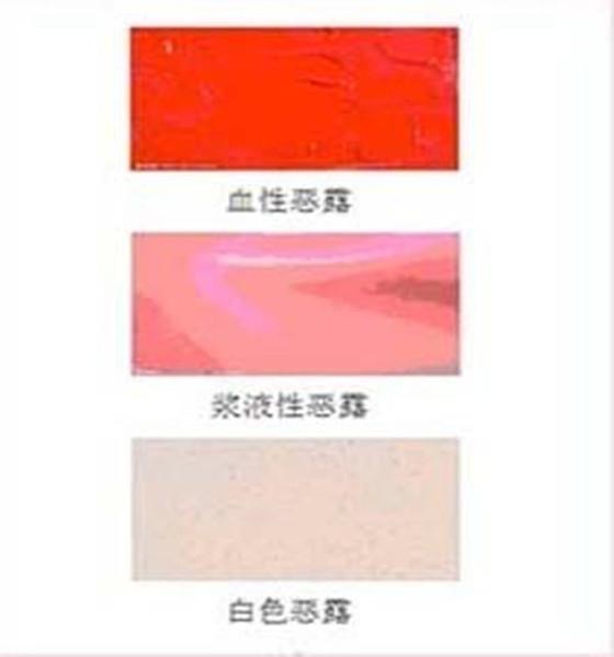 从顺产后恶露颜色变化图 探究产后恶露颜色变化的奥秘