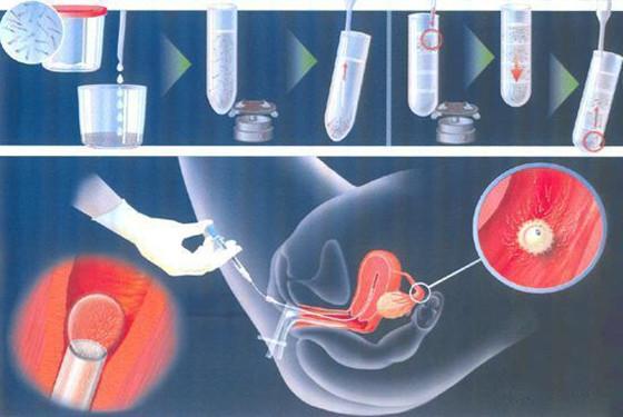 人工辅助受孕的全过程 100%你没见过的受孕过程