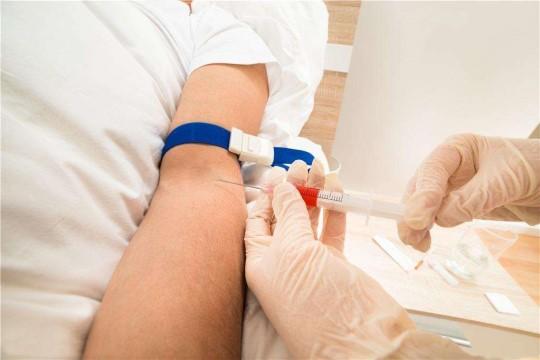 男性性激素检查项目