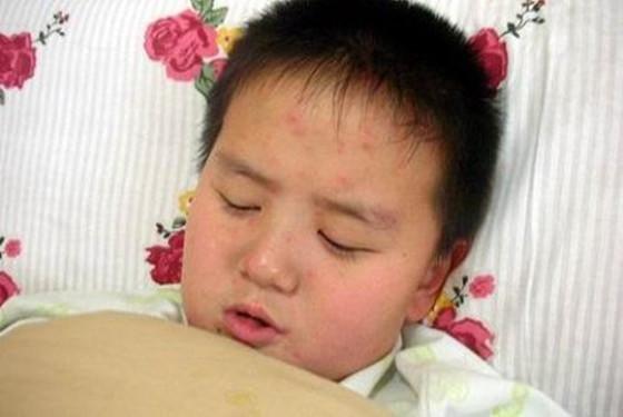 【水痘】一张图带你了解水痘刚开始的样子图片