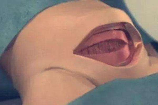 八张图详解剖腹产手术全过程 看完真的好心疼女人