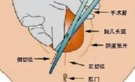 顺产侧切手术全过程以及术后护理的正确方法(附图)