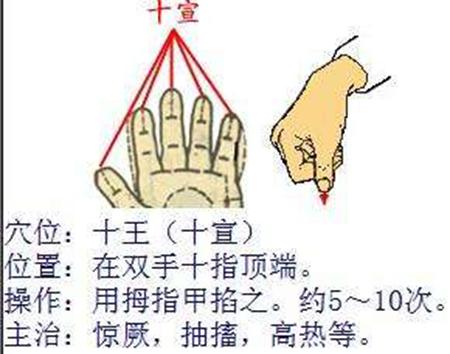 按压十宣穴_发烧搓哪个部位退烧快 推拿手法图第3张